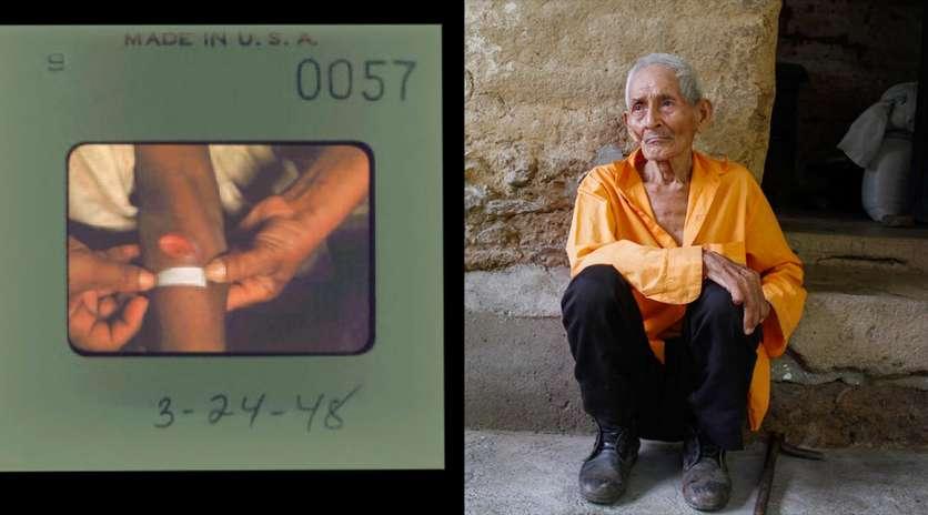 El cruel experimento que infectó a un país latinoamericano de sífilis 2
