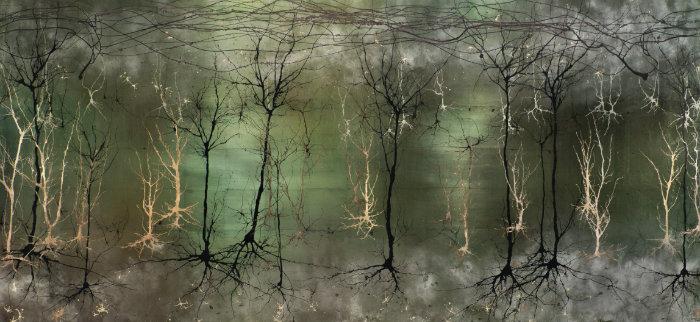 ¿Qué pasa cuando mueren tus neuronas? 4