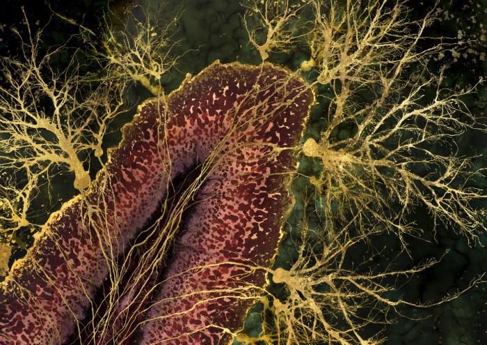 ¿Qué pasa cuando mueren tus neuronas? 2