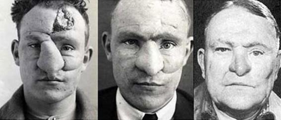 Harold-Gillies padre de la cirugía plástica