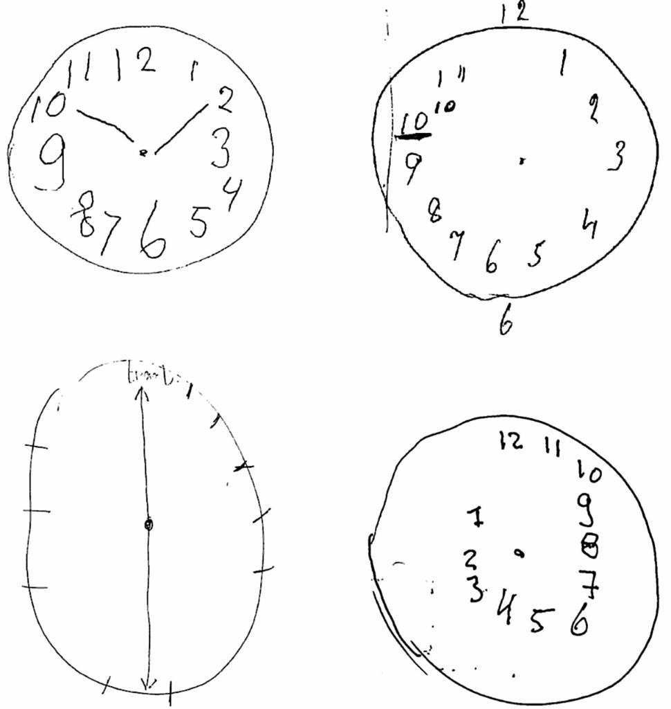 Dibujar un reloj te dice el tipo de trastorno mental que tienes