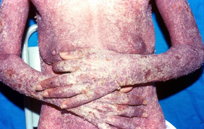 sarna enfermedades poco comunes