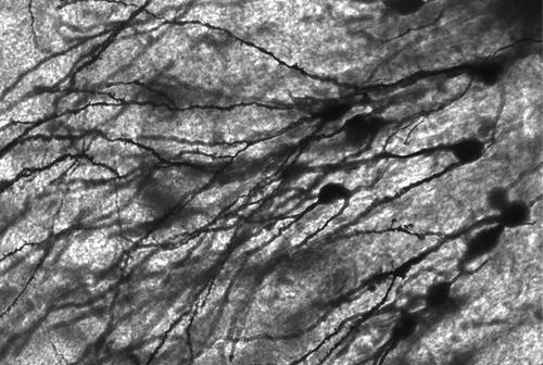 alucinar neurona