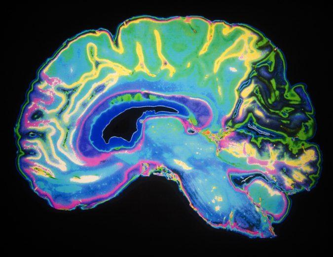 Psicoterapia asistida con psicodélicos: La próxima revolución. Imagen obtenida de: https://img.culturacolectiva.com/content/2016/12/reset-me.jpg