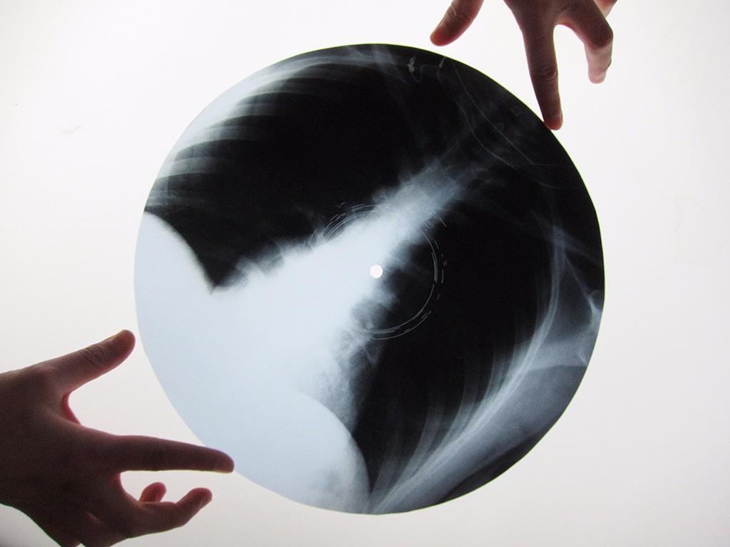 Ribs: los discos piratas hechos con radiografías durante la Unión Soviética