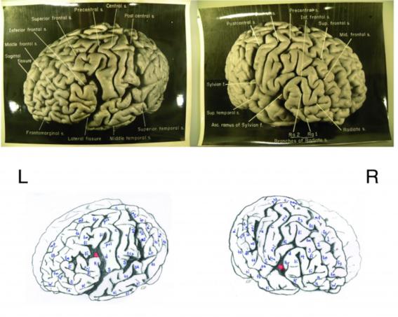 cerebro de einstein