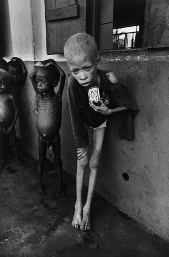 mejores fotografias de la historia desnutri
