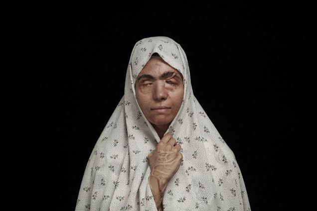 mujeres atacadas con acido cobertor