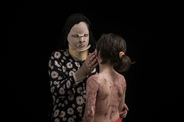 mujeres atacadas con acido familia