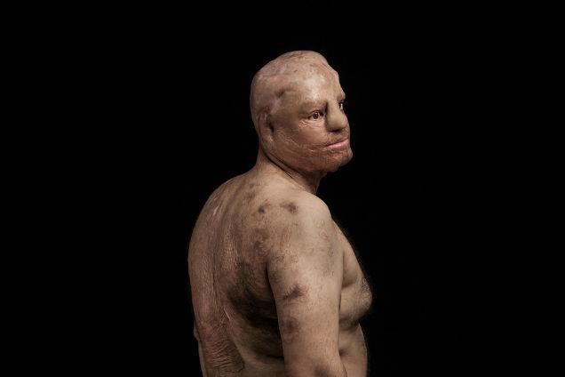 mujeres atacadas con acido hombre