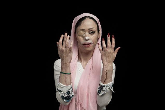 mujeres atacadas con acido manos