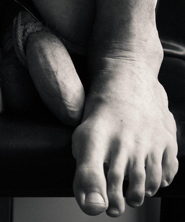 vulnerabilidad del hombre pie