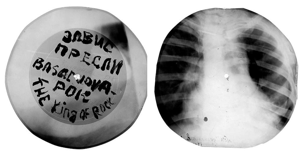 x-rays-vinyl-2