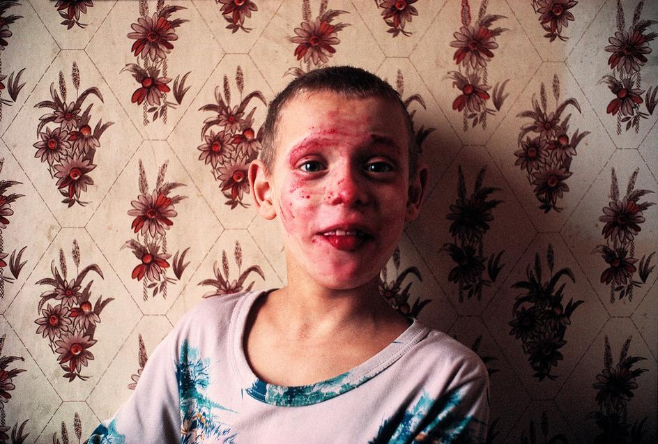 Lise Safarti sangre