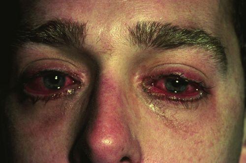 danos y dependencia que causan las drogas coaina