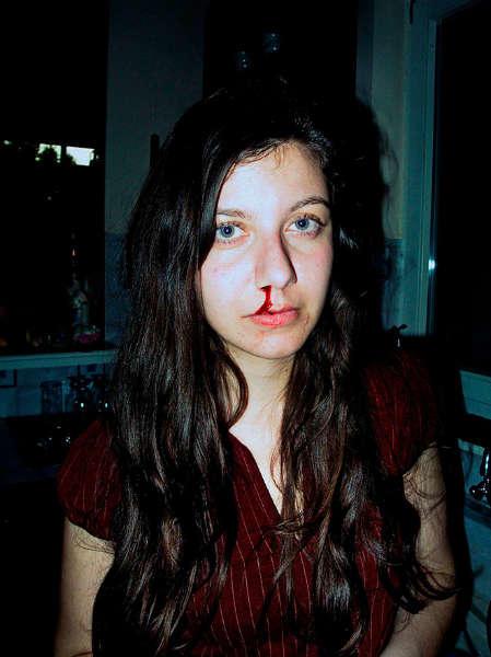 Lly Zoumpouli sangre nariz