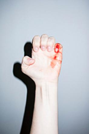 manos dolor y fragilidad