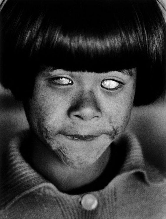 hiroshima despues de la bomba atomica ceguera