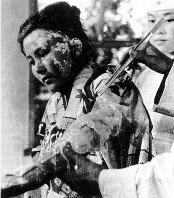 hiroshima despues de la bomba atomica discriminacion