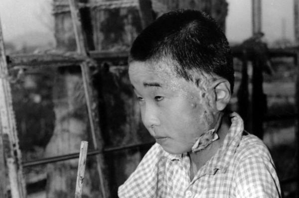hiroshima despues de la bomba atomica nino quemado