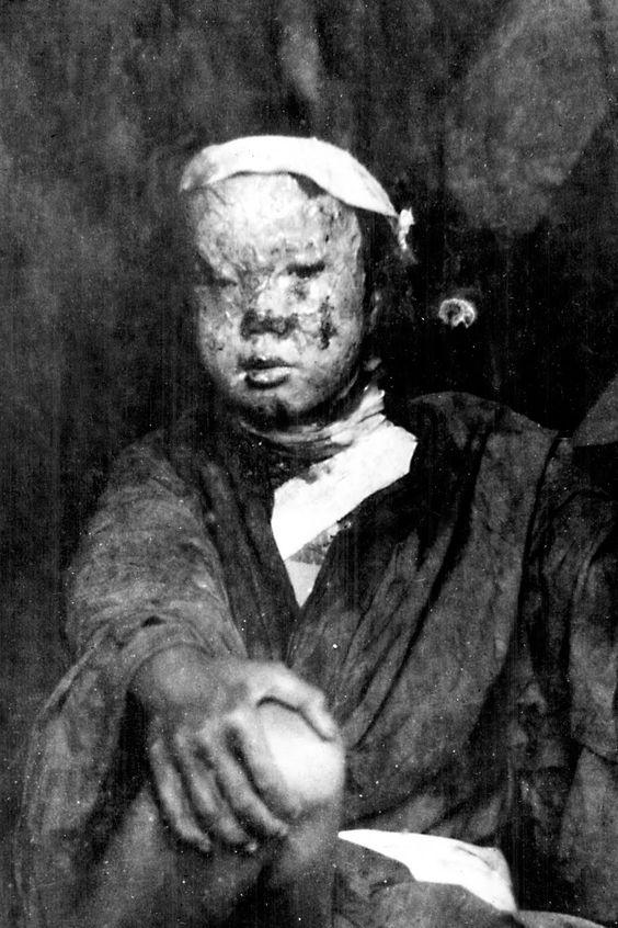 hiroshima despues de la bomba atomica quemaduras