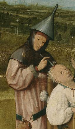 La extraccion de la piedra de la locura medico