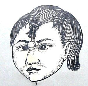 estrabismo mayas