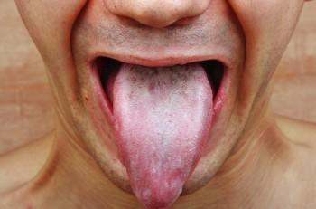 gonorrea sexo oral