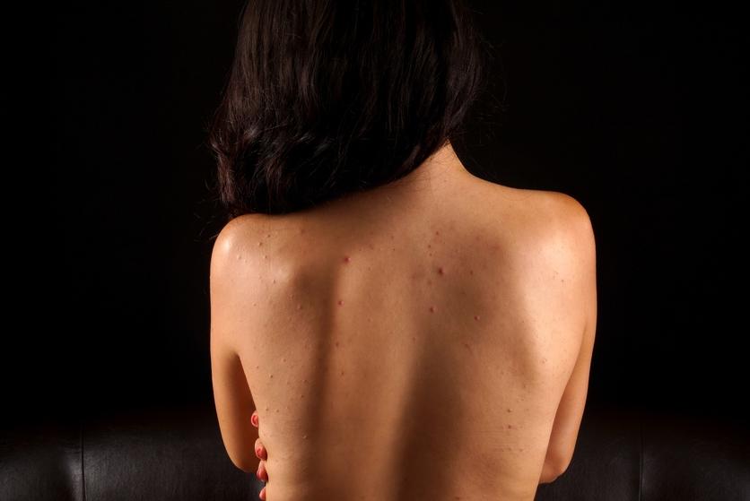 7 remedios para combatir el acné en poco tiempo y sin gastar mucho 0