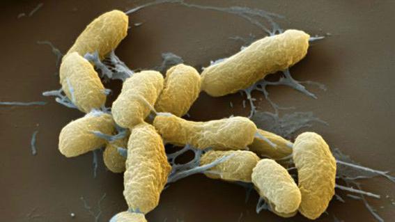 pulgas portadoras de peste negra en arizona 1