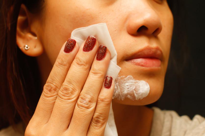 7 remedios para combatir el acné en poco tiempo y sin gastar mucho 2