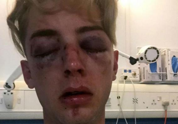 Joven golpeado por ser homosexual rights