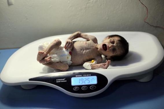 muere bebe desnutrida en siria 2