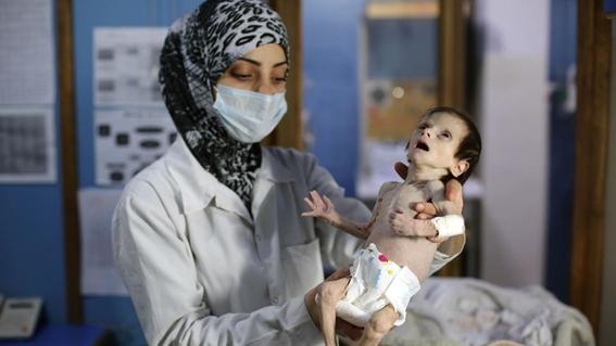 muere bebe desnutrida en siria 1