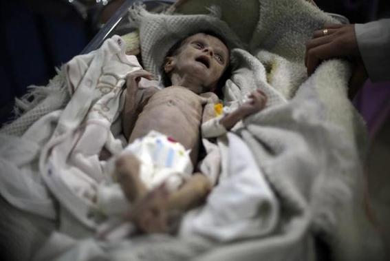 muere bebe desnutrida en siria 3