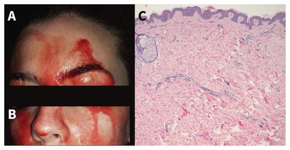 hematohidrosis enfermedad que hace sudar sangre 1