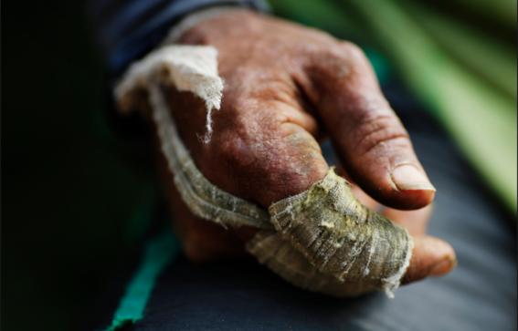 campesinos de coca son asesinados en colombia 2