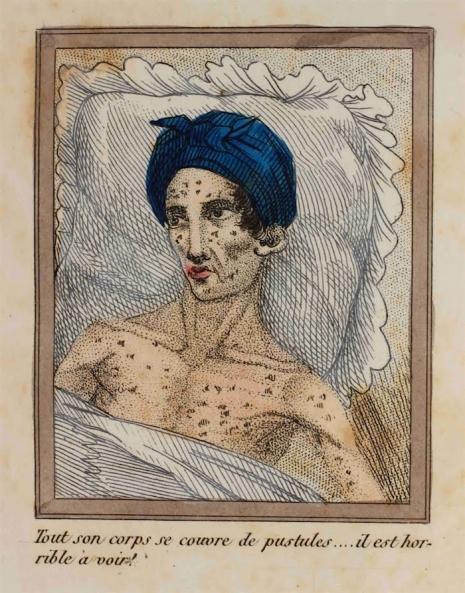 morir por masturbacion en el siglo xix 3