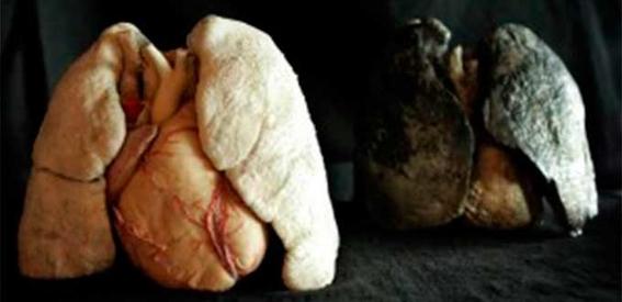 tratamiento contra el cancer de pulmon 3