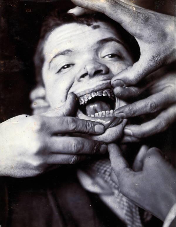 Fotografías históricas de cómo se vivía en un manicomio 3