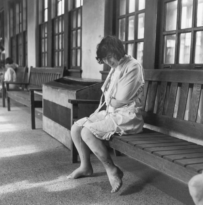 Fotografías históricas de cómo se vivía en un manicomio 14