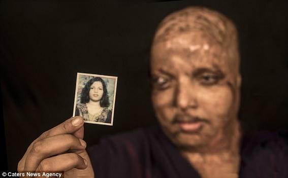 mujer que fue atacada con acido encuentra el amor verdadero 1