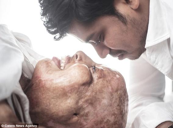 mujer que fue atacada con acido encuentra el amor verdadero 2