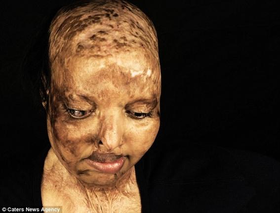 mujer que fue atacada con acido encuentra el amor verdadero 3