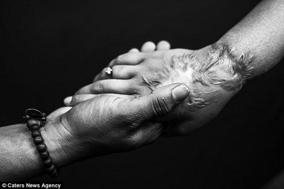 mujer que fue atacada con acido encuentra el amor verdadero 5
