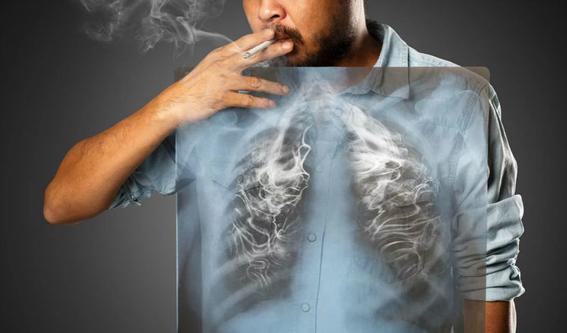 dia internacional del cancer de pulmon 3