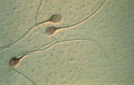 contaminacion podria alterar calidad del semen 2