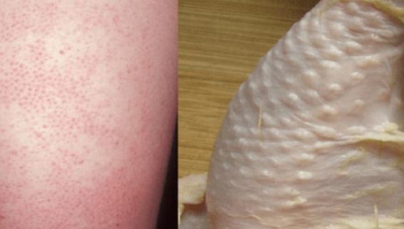 granitos pequeños en la piel