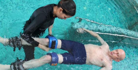 cura para atrofia muscular 2