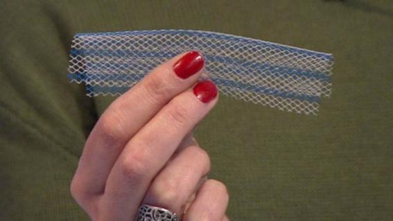 malla vaginal es prohibida en nueva zelanda 2